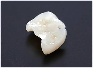 白い詰め物/銀歯を白く